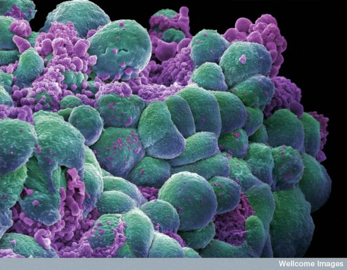In this image, cancerous mammary cells have begun a process known as apoptosis, or programmed cell death.