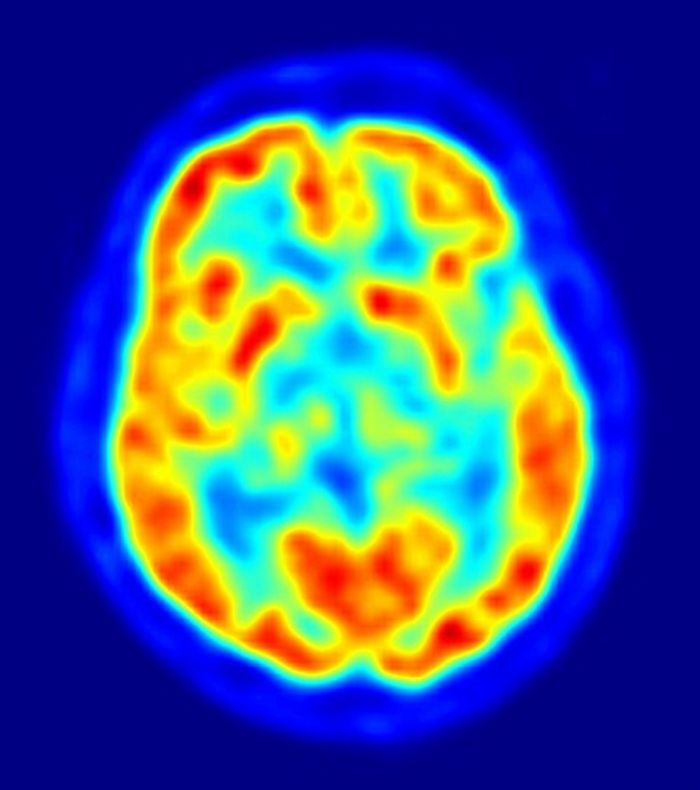 Common drugs could affect brain injury recovery time in elderly patients.