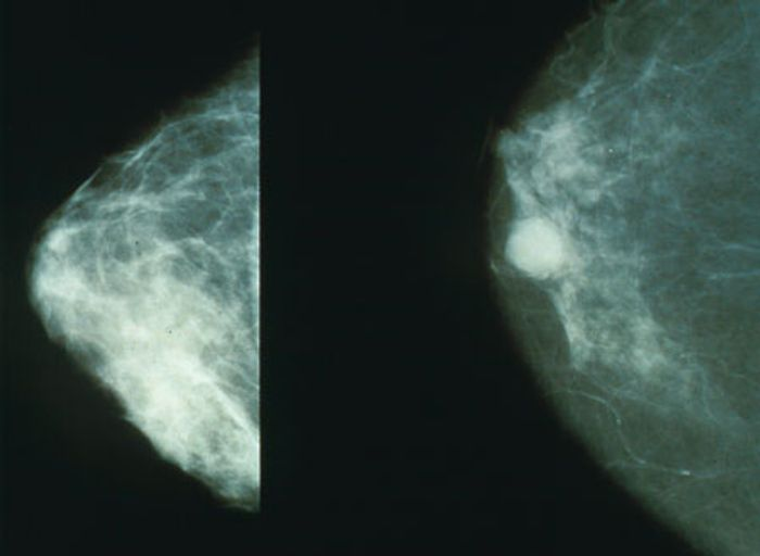 A few years ago, it was reported that breast cancer patients with a high number of immune cells called neutrophils in their blood are at increased risk of developing metastases.