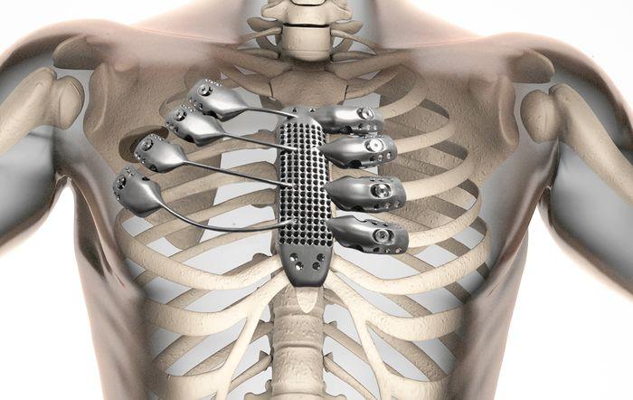 Anatomics/CSIRO