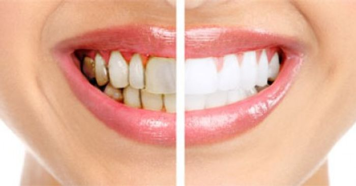 P. gingivalis causes gum disease (left).