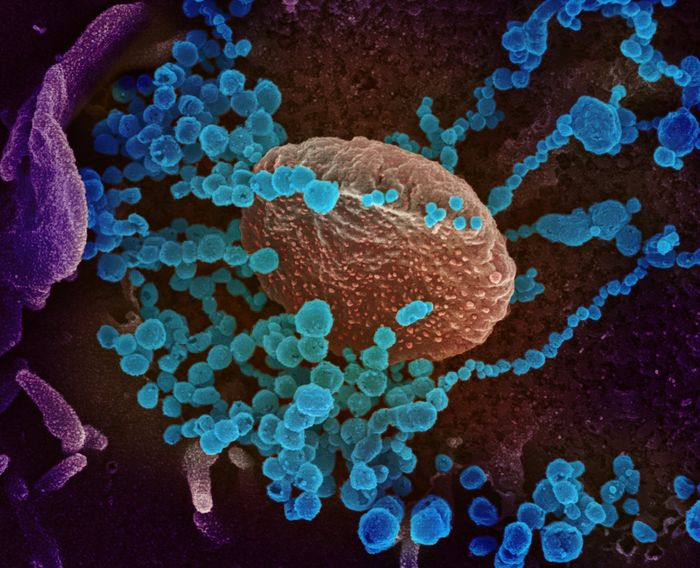 Novel Coronavirus SARS-CoV-2  This scanning electron microscope image shows SARS-CoV-2 (round blue objects) emerging from the surface of cells cultured in the lab. SARS-CoV-2, also known as 2019-nCoV, is the virus that causes COVID-19. The virus shown was isolated from a patient in the U.S. / Credit: NIAID-RML