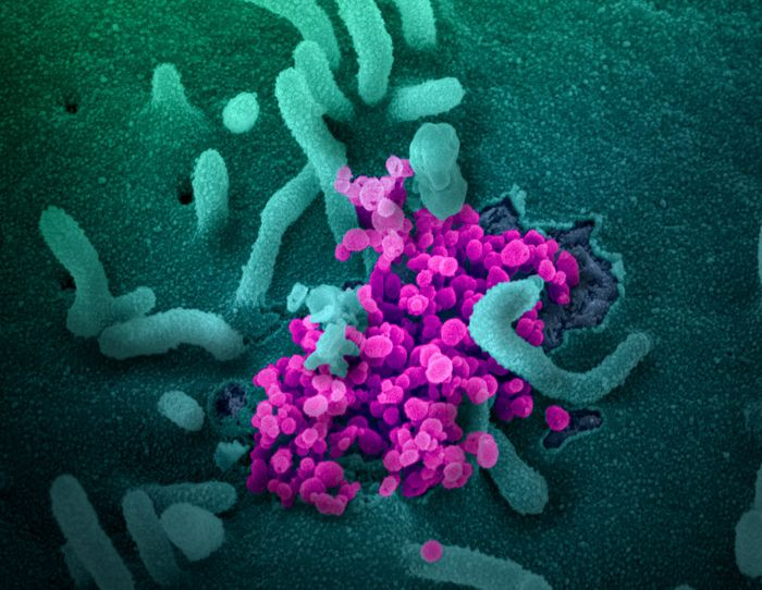 This scanning electron microscope image shows SARS-CoV-2 (round magenta objects) emerging from the surface of cells cultured in the lab. SARS-CoV-2, also known as 2019-nCoV, is the virus that causes COVID-19. The virus shown was isolated from a patient in the U.S. / Credit: NIAID-RML