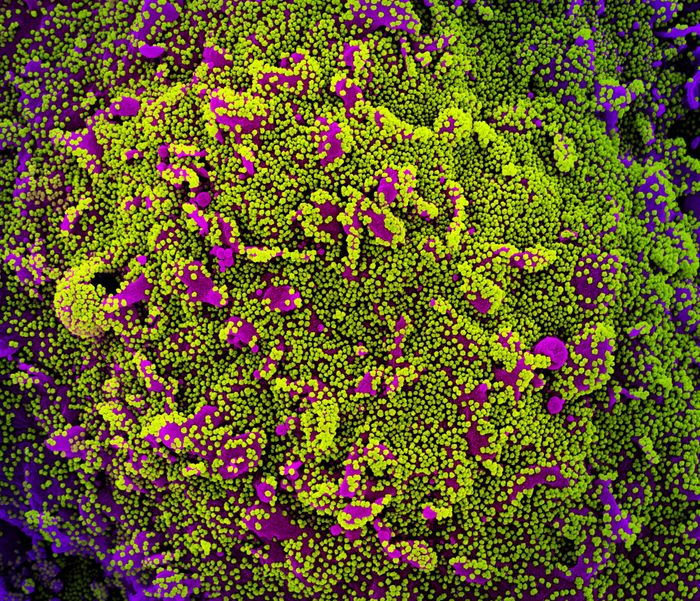 Colorized scanning electron micrograph of a cell (purple) heavily infected with SARS-CoV-2 virus particles, isolated from a patient sample. Image captured at the NIAID Integrated Research Facility (IRF) in Fort Detrick, Maryland. Credit: NIAID