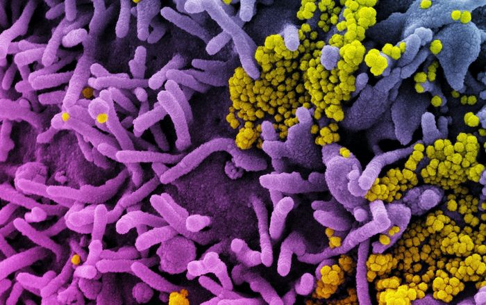 Colorized scanning electron micrograph of a cell (purple) infected with SARS-CoV-2 virus particles (yellow), isolated from a patient sample. Image captured at the NIAID Integrated Research Facility (IRF) in Fort Detrick, Maryland. Credit: NIAID