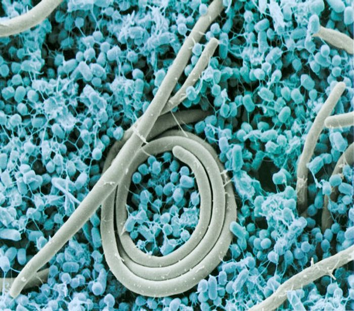 Colorized scanning electron micrograph of the foodborne pathogen Salmonella enteritidis, the most common in the United States alongside Salmonella typhimurium.