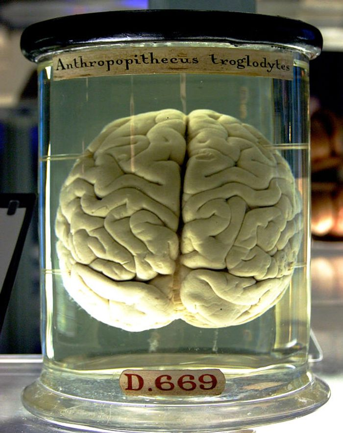 Lab grown brains might be a reality someday