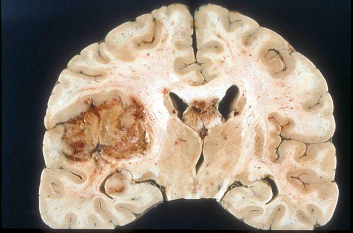A glioblastoma tumor
