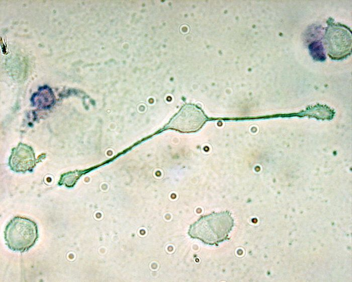 A macrophage of a mouse forming two processes to phagocytize two smaller particles, possibly pathogens. Credit: Wikimedia user magnaram