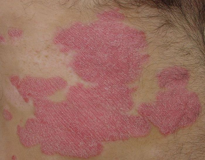 Characteristic patches of plaque psoriasis. Credit: Eisfelder