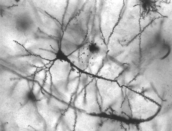 Golgi stained pyramidal neuron in the hippocampus of an epileptic patient. Credit: MethoxyRoxy