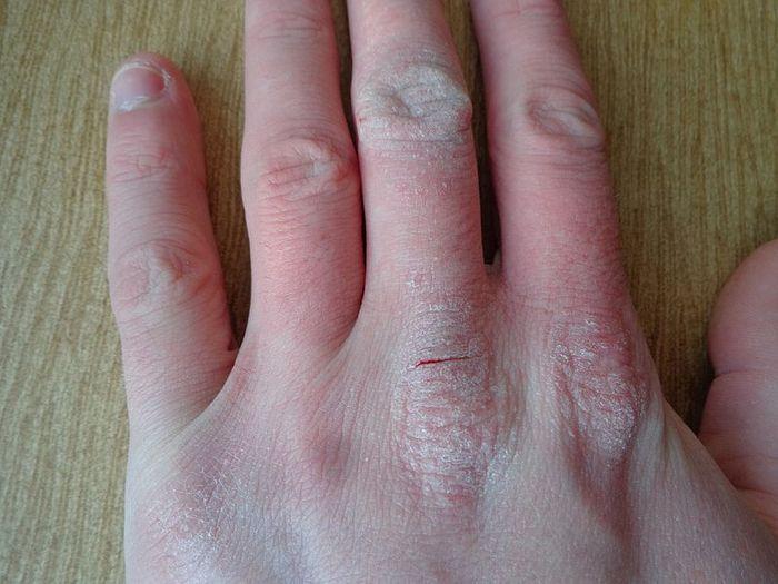 Atopic dermatitis. Credit: Wikimedia user AfroBrazilian.