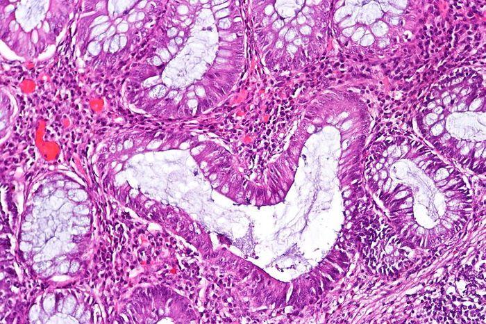 Histopathology image of chronic inactive ulcerative colitis. Credit: CoRus13