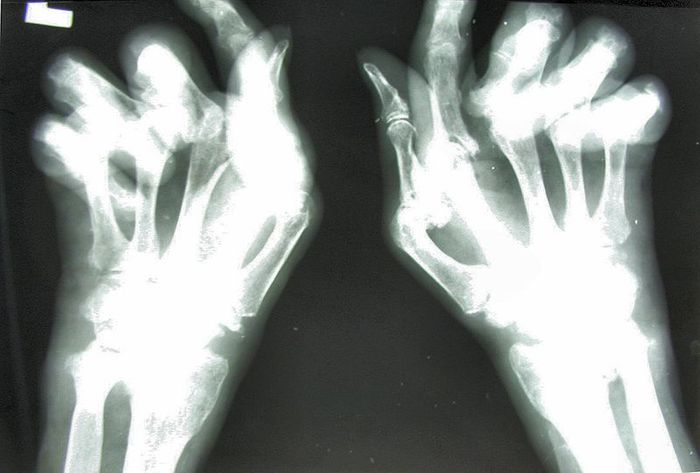 Rheumatoid arthritis: X-ray image of the hand with large changes in destructive arthritis.
