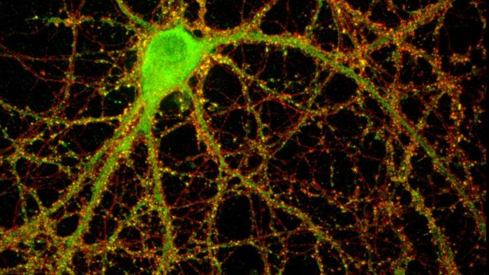 A mouse hippocampal neuron studded with thousands of synaptic connections (yellow).  / Credit: Image by Lisa Boulanger / Princeton University