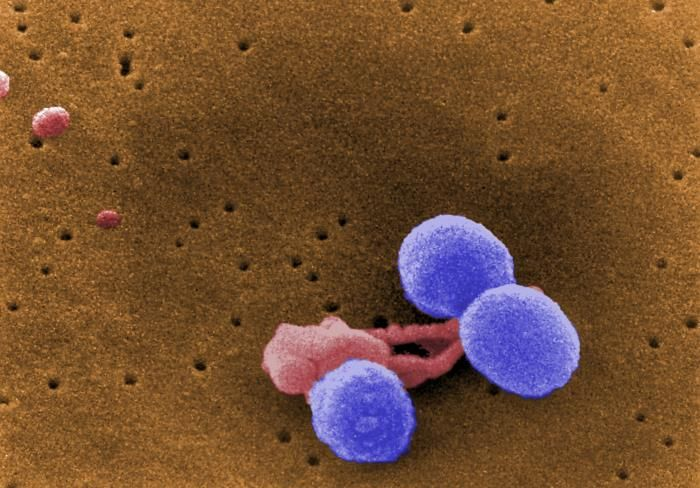 A digitally-colorized, scanning electron microscopic (SEM) image depicting what were three Streptococcus pneumoniae bacteria (lavender), as they were attacked by an irregularly-shaped white blood cell (pink) / Credit: CDC/ Dr. Richard Facklam/Janice Haney Carr