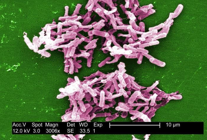 A digitally-colorized scanning electron microscopic image depicting a group of Clostridium difficile bacteria, cultured from a stool sample after an outbreak. / Credit: CDC/ Lois S. Wiggs