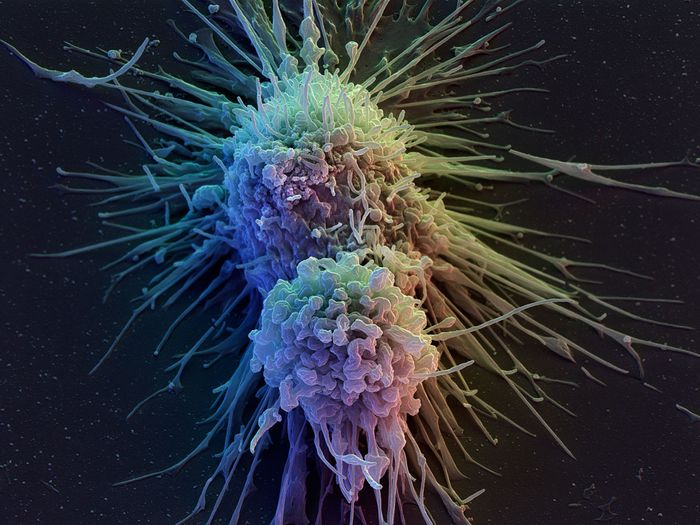 Lymphoblast cells eventually become lymphocytes, cells that are responsible for fighting infection, such as T-Cells. Source: The Independent
