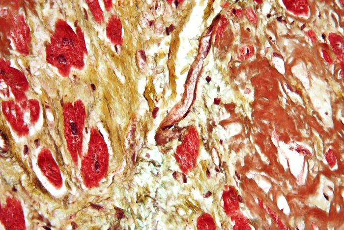 Micrograph of a heart with fibrosis (yellow) and amyloidosis (brown). Credit: Simple Wikipedia