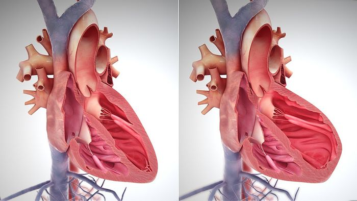 A normal healthy heart (left) and failing heart (right). Credit: Scientific Animations