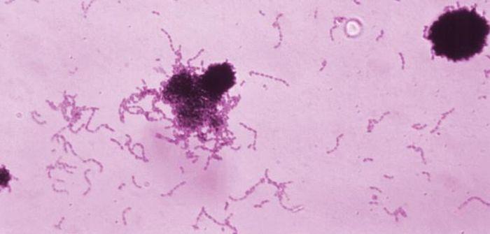 Streptococcus mutans bacteria. / Credit: CDC/ Dr. Richard Facklam