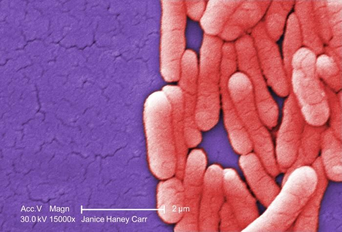 At 15000X magnification, this digitally-colorized scanning electron microscopic image reveals Salmonella typhimurium bacteria grown in a pure culture / Credit: CDC/ Bette Jensen/Janice Haney Carr