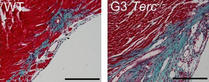 Telomerase-deficient heart tissue (right) with large fibrotic regions (blue) versus wildtype myocardium (left)