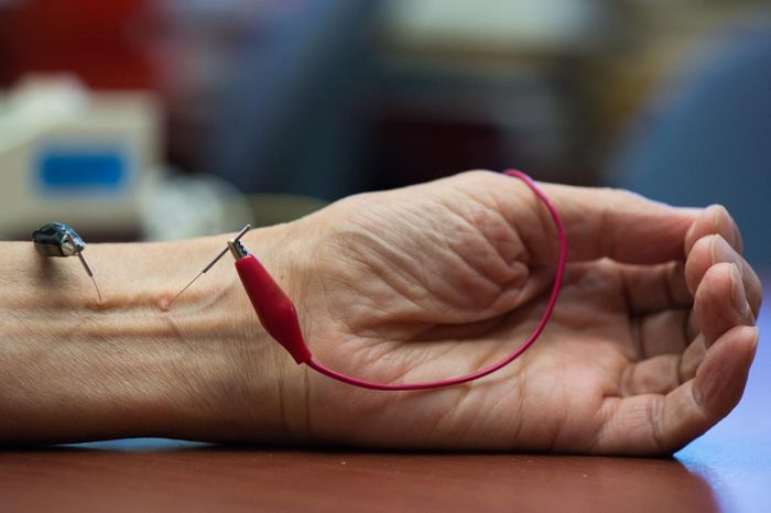 The study shows repetitive electroacupuncture evokes a long-lasting action in lowering blood pressure. Credit: Chris Nugent / UCI