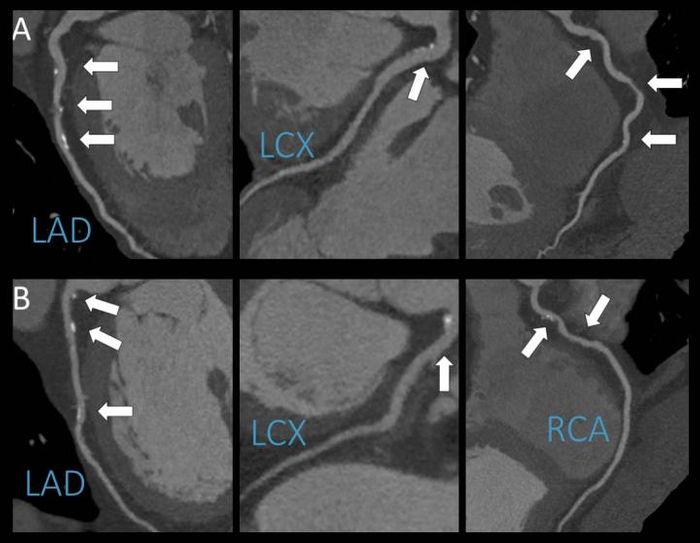 A representative example of coronary CT angiography of a patient who reported no alcohol consumption (panel A) and a patient who reported moderate alcohol consumption (panel B). The age and gender matched patients display the same extent and severity of coronary artery disease. Source: Radiological Society of America