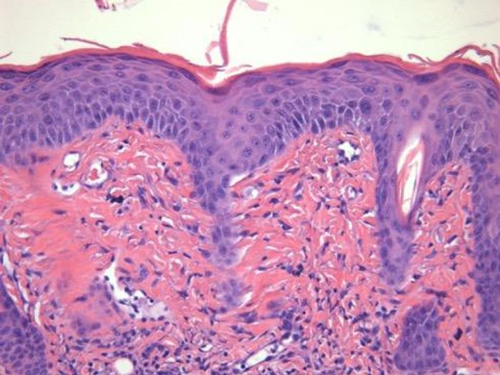 Stained section from back skin of a psoriasis mouse showing characteristic inflammatory cellular responses. Source: Case Western Reserve University School of Medicine