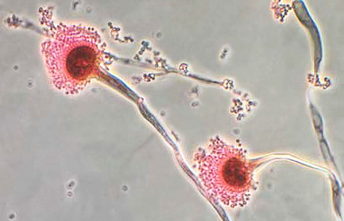 This photomicrograph reveals some of the ultrastructural morphology displayed by the fungal organism Aspergillus fumigatus. / Credit: CDC/Public Health Image Library