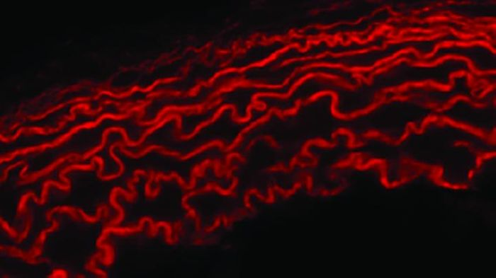 Elastin and collagen cross-link throughout the body, as shown here in healthy cardiac tissue. Credit: Washington University in St. Louis