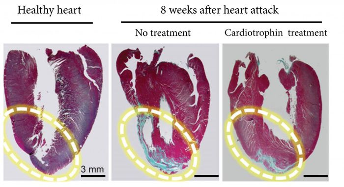 The far right image shows how a cardiotrophin treatment repaired heart muscle after a heart attack in a rat model. The blue areas are scar tissue and the red sections are healthy heart muscle. Source: Cell Research