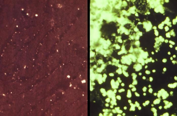 Francisella tularensis bacteria in a mouse liver tissue specimen. / Credit: CDC/ Ann Herbert