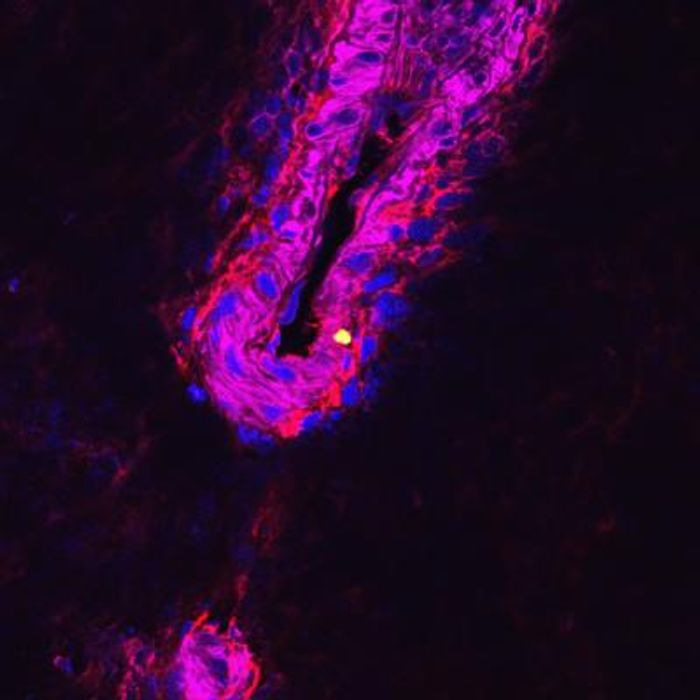 This is an image of a cluster of pneumococcal cells replicating. / Credit: University of Leicester