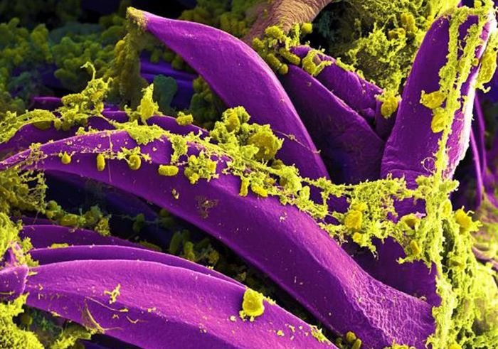 A digitally colorized SEM image of yellow-colored, Yersinia pestis bacteria gathered on the proventricular spines of a Xenopsylla cheopis flea. These spines are found in the interior of a part of the flea's digestive system. / Credit: National Institute of Allergy and Infectious Diseases (NIAID)