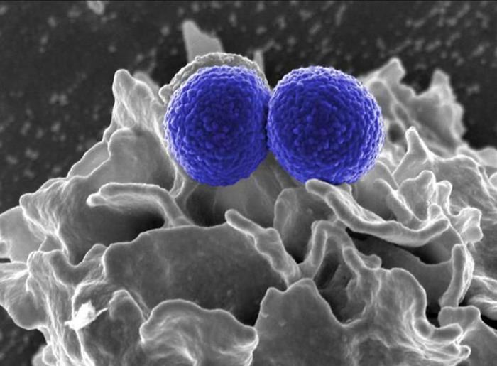 Two blue-colored, spherical, methicillin-resistant, Staphylococcus aureus (MRSA) bacteria in the process of being phagocytized by an uncolored, human white blood cell (WBC). / Credit: National Institute of Allergy and Infectious Diseases (NIAID)