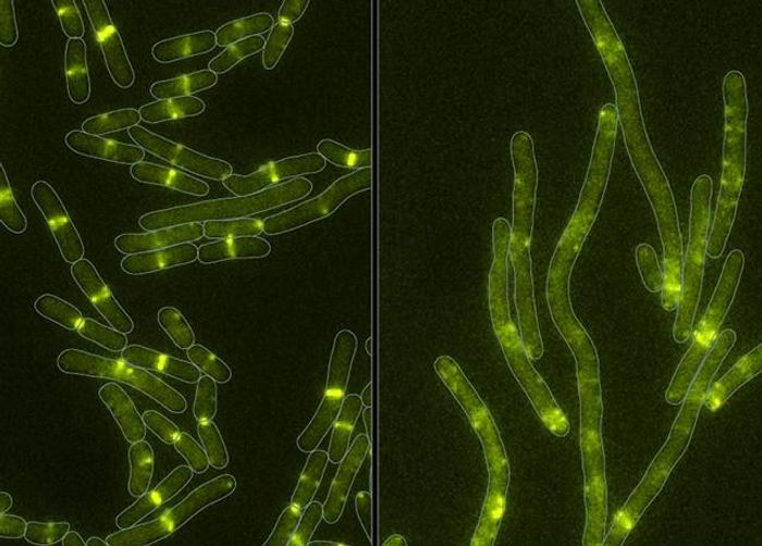 Healthy cells (left) and cells under attack by the newly discovered toxin (right). The protein targeted by the toxin is labeled with green fluorescent protein. The toxin disrupts the structure made by this protein at the center of the cell. Without this structure, cells cannot divide. Instead, they grow longer until eventually they break apart and die.  / Credit: Mougous Lab/UW Medicine