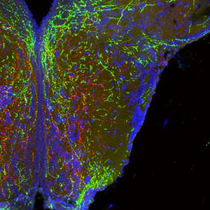 Long, wire-like projections of neurons in the hypothalamus that form body weight circuits appear red and green. Cell bodies from one area of the hypothalamus (bottom of image) branch up to another. Note that these cells specifically avoid some areas (appearing dark in the image) to seek proper targets. / Credit: Dr. Sebastien Bouret, CHLA