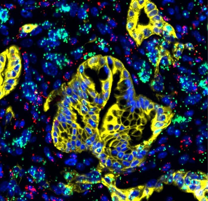 LIF (green), expressed mainly in activated pancreatic stellate cells, is shown along with immune cells (purple) and cancer cells (yellow) in pancreatic cancer tissue. / Credit: Salk Institute