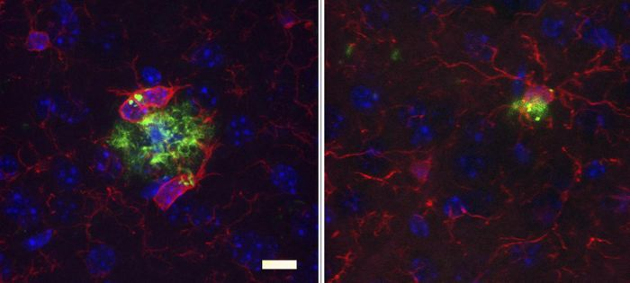 Long-term antibiotic treatment (right) reduces amyloid plaque size (green), alters microglia (red) in the brains of male mice compared to control (left). / Credit: Dodiya et al., 2019