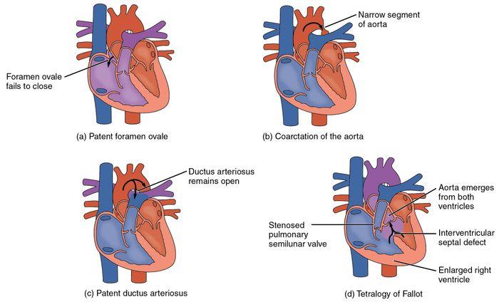 Type of Congenital Heart Defects