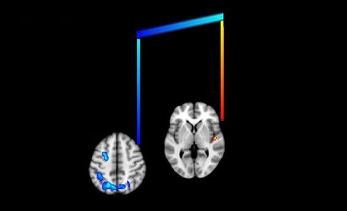 Music can unlock memories for dementia patients