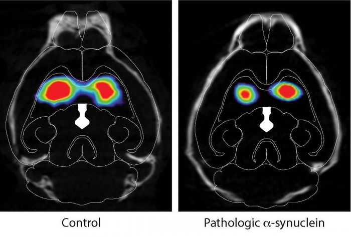 The images are of DAT scans of mice injected in gut with pathologic alpha-synuclein on the right and control injected animals on the left. Note the loss of dopamine in the striatum of mice injected with pathologic alpha-synuclein. / Credit: Ted Dawson et al. / Neuron, 2019