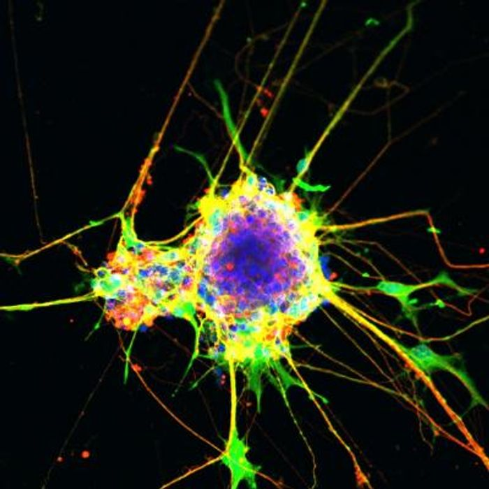 Neurons generated using the cell culture method described in the paper. / Credit: Salk Institute