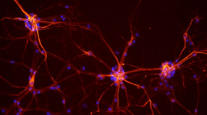 Neurons from a mouse spinal cord. / Credit: NICHD/S. Jeong