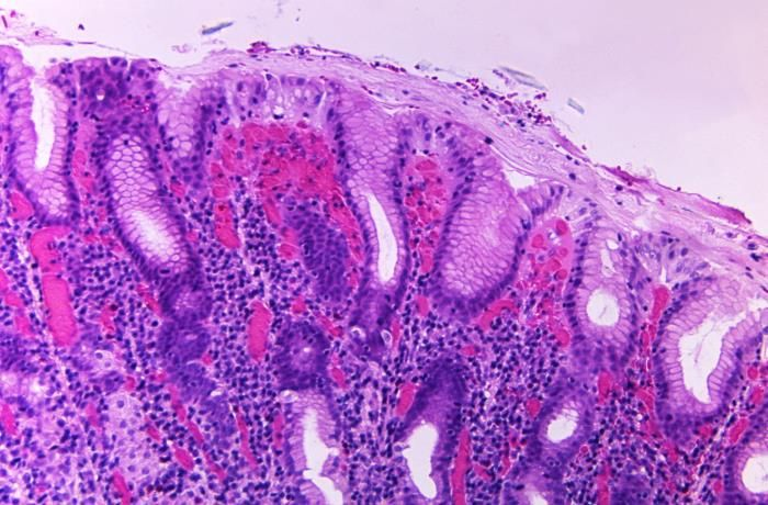 A photomicrograph of a gastric biopsy specimen from a cholera patient, revealing acute and chronic gastritis; Vibrio cholerae bacteria are thought to multiply in the overlying mucus membrane of the gastric mucosal epithelium. / Credit: CDC/ Dr. Gangarosa