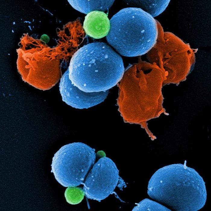 Scanning electron micrograph of intact MRSA (blue), PK150-induced vesicle formation (green), and MRSA destroyed by PK150 (red). / Credit: Manfred Rohde / HZI