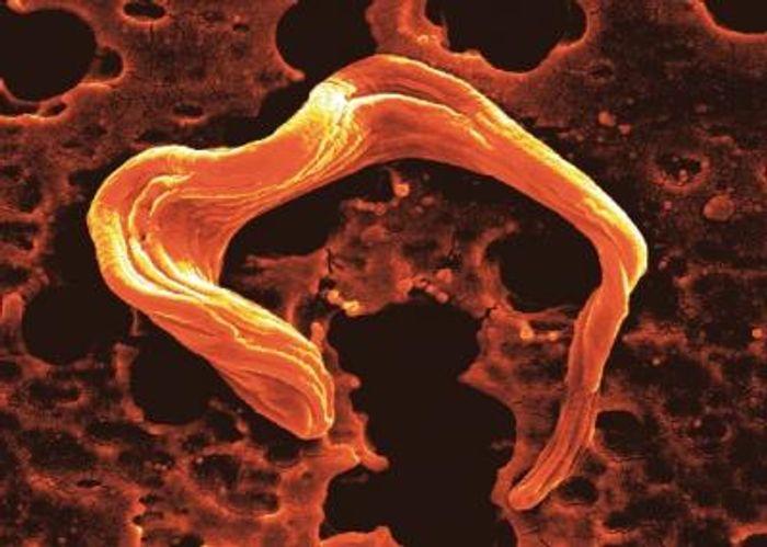 Scanning Electron Microscopy image of the parasite Trypanosoma brucei / Credit: Mick Urbaniak