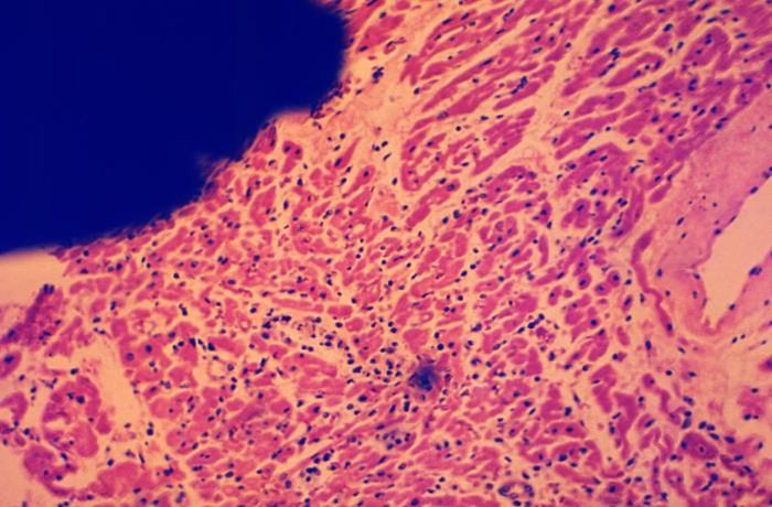 A photomicrograph of a section of myocardial tissue, specifically in an area of myocarditis / Credit: CDC/ Dr. Flynt